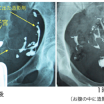 子宮卵管造影2