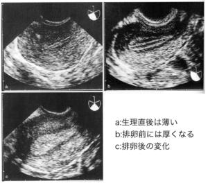 子宮内膜の超音波