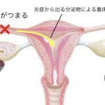 クラミジアによる不妊症