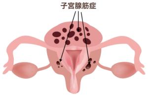 子宮腺筋症図