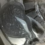 子宮腺筋症1