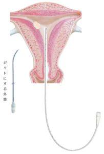 胚移植のカテーテル