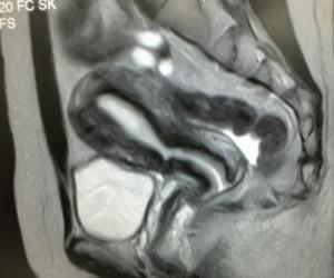 MRIの子宮