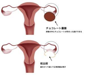 cystectomy