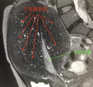子宮腺筋症