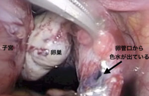 卵管色素検査